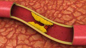 artery cp 584 300x168