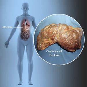 cirrhosis s1 facts 300x300